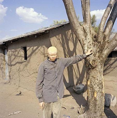 Andri Pol - aus: Albinojagd in Tansania