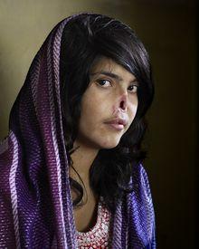 World Press Photo des Jahres 2011: Die von ihrem Mann entstellte Afghanin Bibi Aisha. © Jodi Bieber