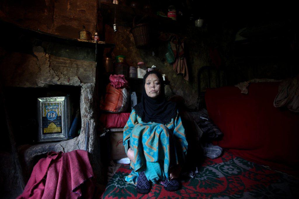 Porträt einer leprakranken Frau, Srinagar, Indien EPA/FAROOQ KHAN