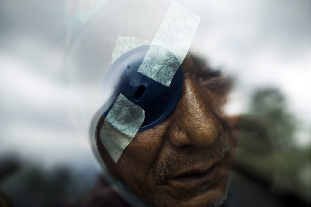Augenpatient in Nepal EPA/NARENDRA SHRESTHA