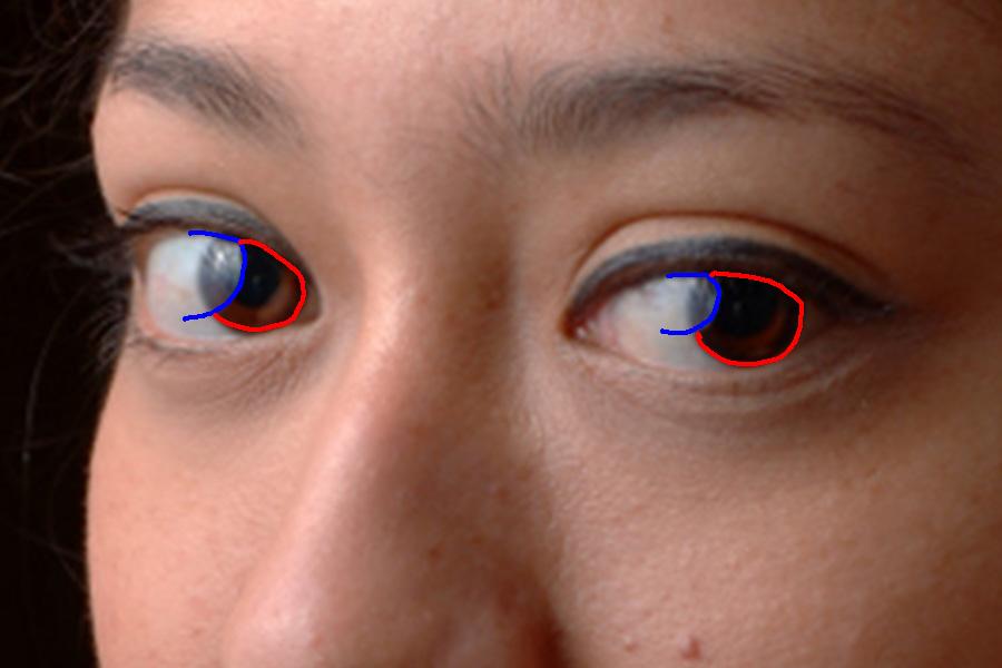 Problembereich: Augen