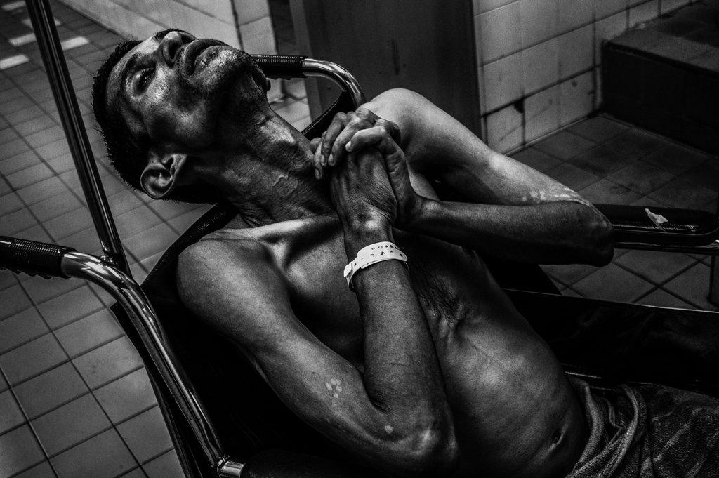 Todkranker Krebspatient in Malaysia (der Bruder des Fotografen) EPA/AHMAD YUSNI