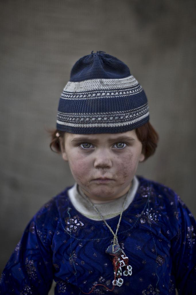 Serie - afghanische Flüchtlingskinder: Basmina, 3; Islamabad Pakistan (AP Photo/Muhammed Muheisen)