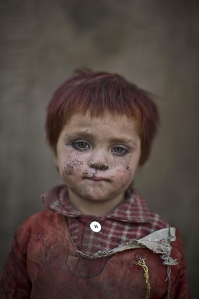 Serie - afghanische Flüchtlingskinder: Gul Bibi Shamra, 3; Islamabad Pakistan (AP Photo/Muhammed Muheisen)
