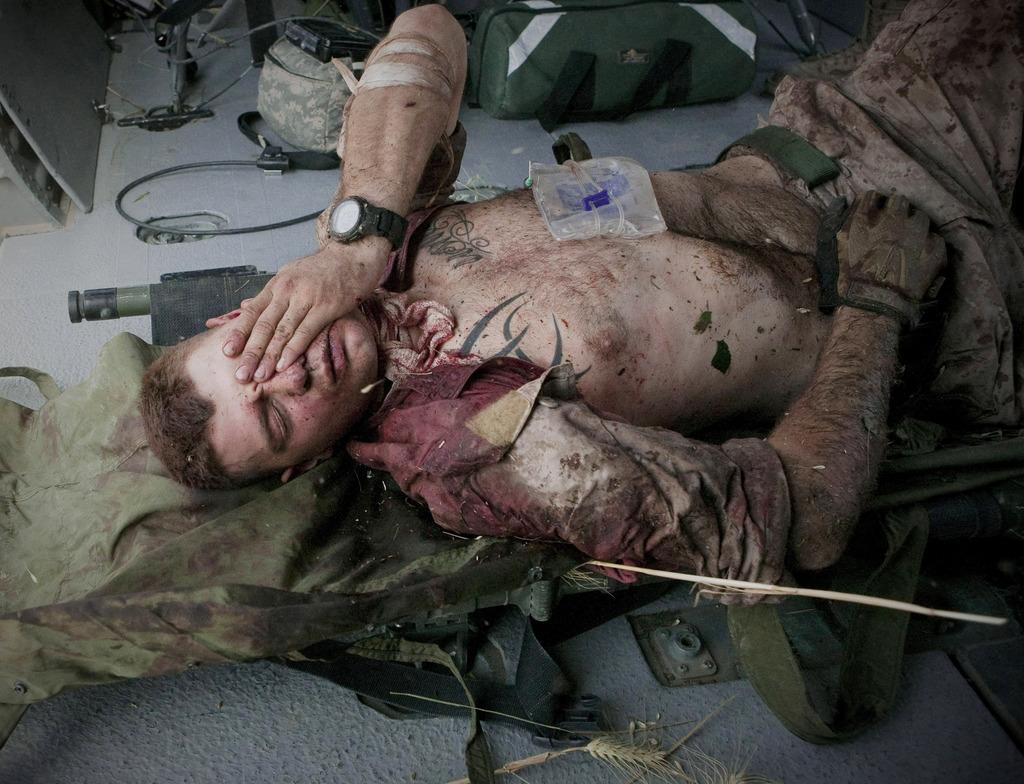 Verletzter Soldat (Keystone/AP Photo/Anja Niedringhaus)