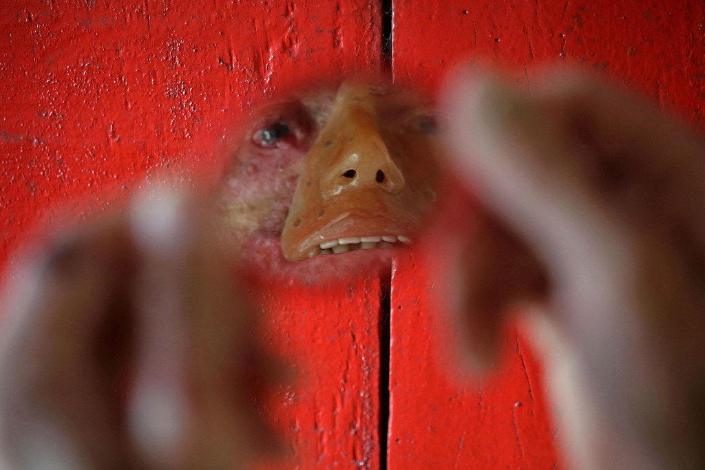 Porträt eines an einer seltenen Hautkrankheit erkrankten Brasilianers,  Araras im Bundesstaat Goia (AP Photo/Eraldo Peres)