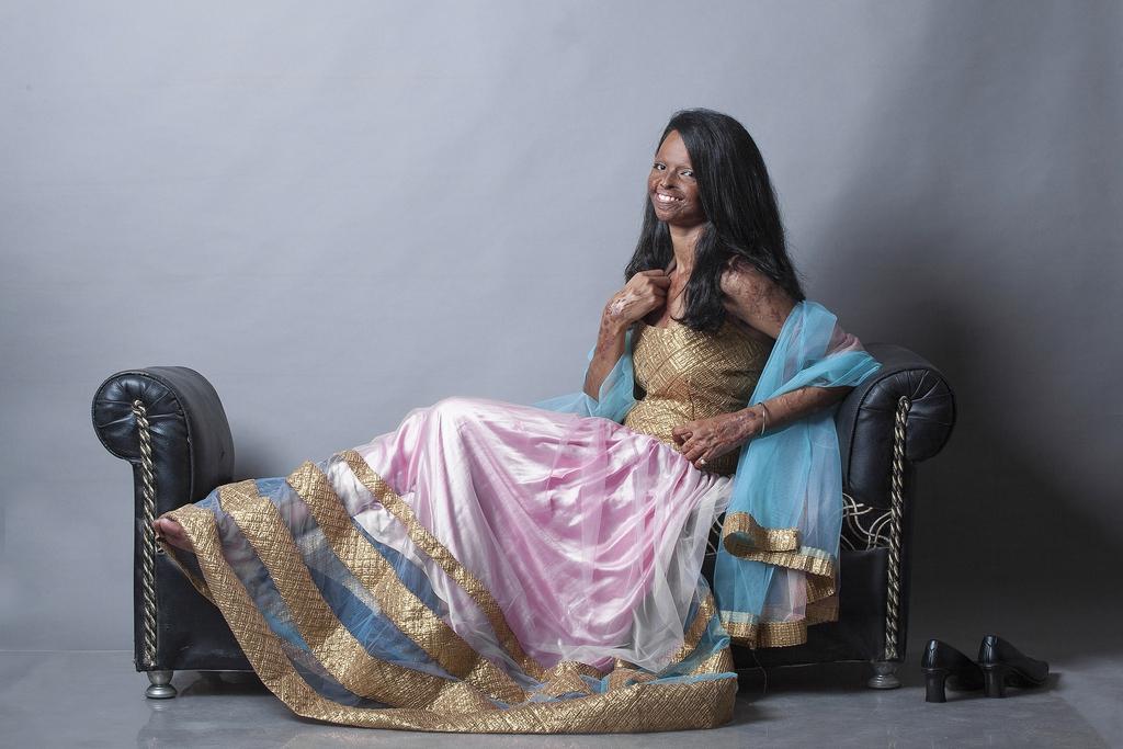 Modeshooting mit einer jungen Frau, die Opfer eines Säureanschlags geworden ist, Neu Delhi, Indien  (AP Photo/Rahul Saharan)